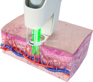 3d depiction of laser treating vascular lesions