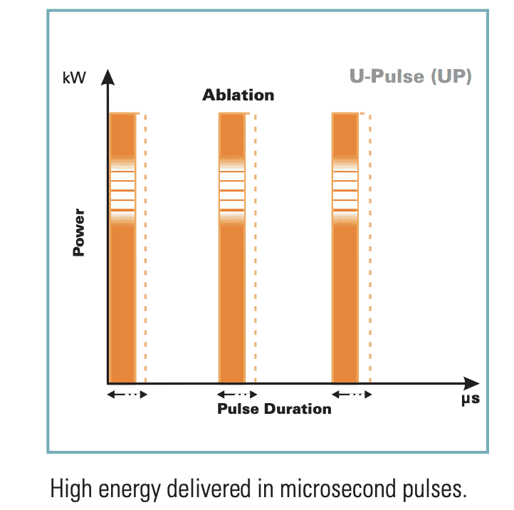 U Pulse -Best Ultrapulse for ENT Microsurgery