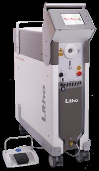 Litho Surgical Laser System